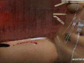 आंकी और बंधे श्यामला बेब के लिए इलेक्ट्रो उपचार
